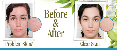 Clear Skin Organically
